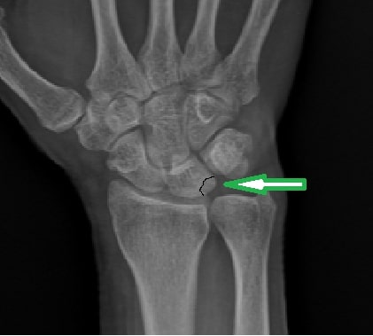 ortopedi doktoru